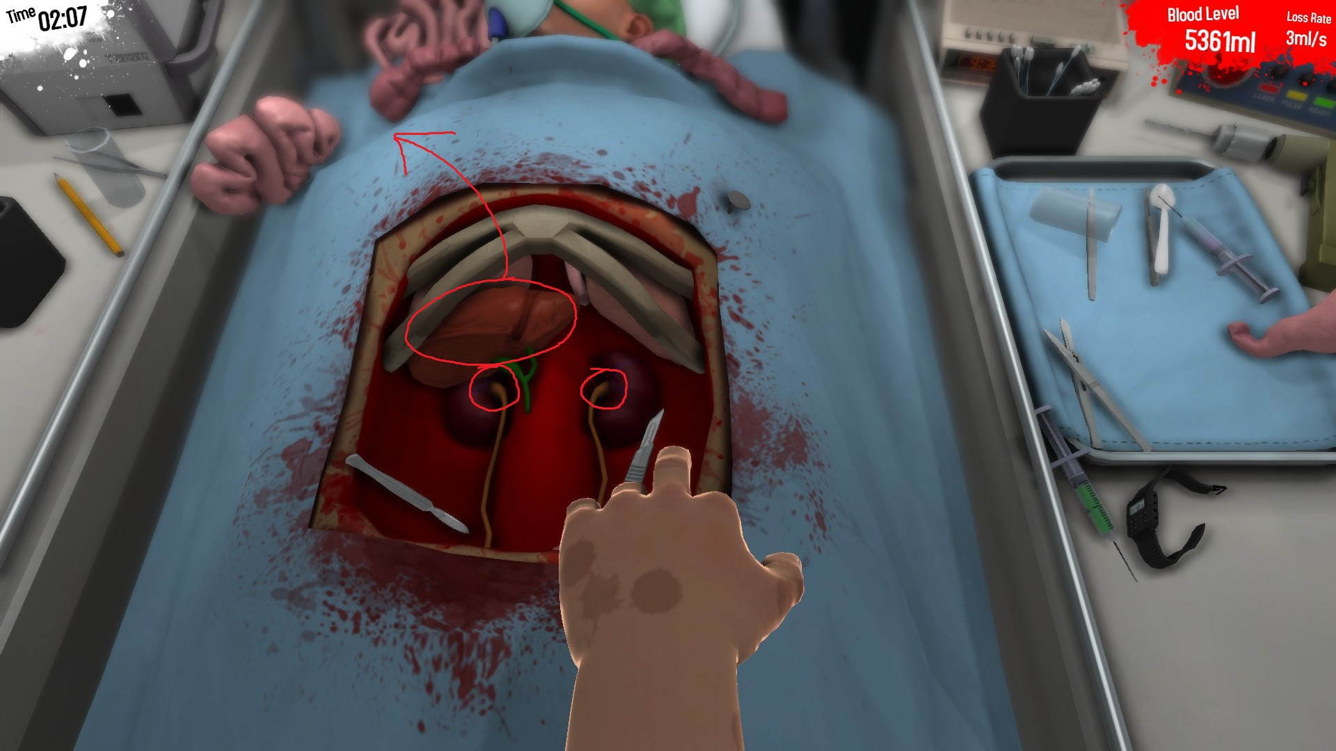 steam community guide surgeon simulator 2013 coming